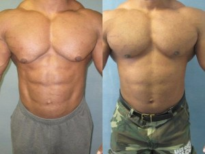 gynecomastie-avant-apres-super-steroid