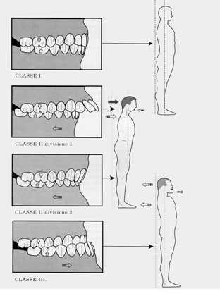 Occlusione dentale, postura