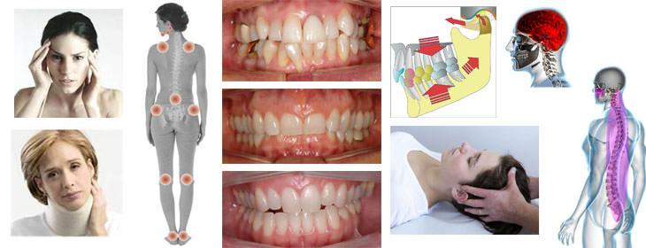 Occlusione dentale, postura e mal di schiena - Muscolarmente
