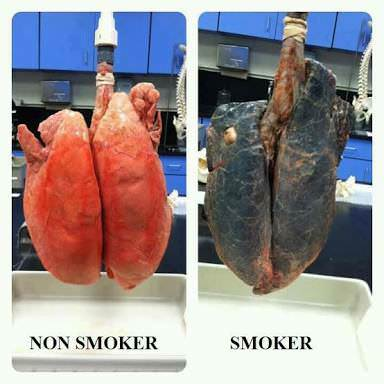 Come il fumo influisce sulla crescita muscolare